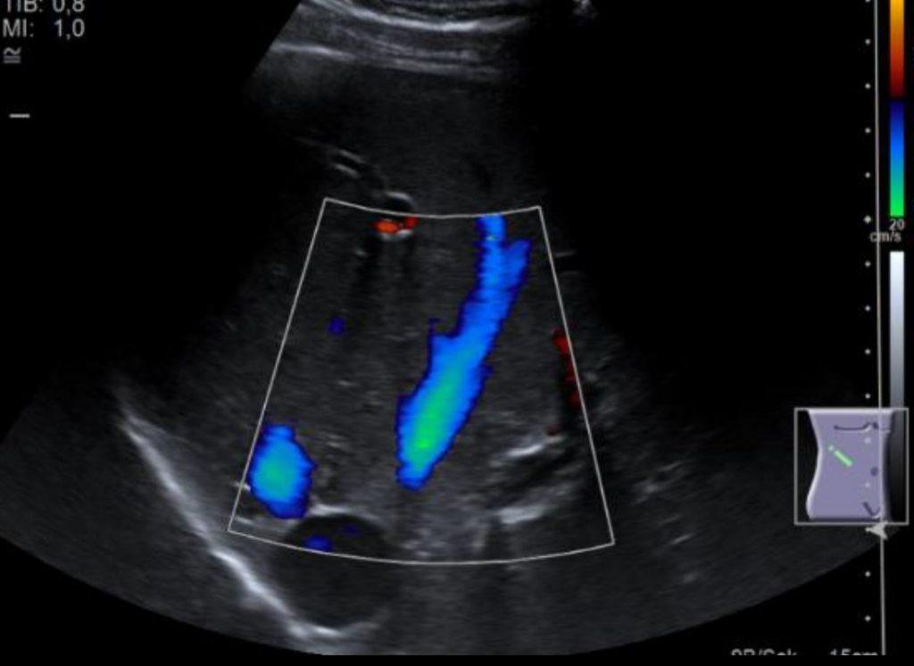 Ultraschall Lebervenen
